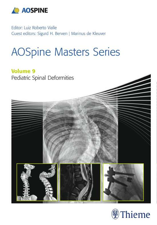 AOSpine Masters Series, Volume 9: Pediatric Spinal Deformities xyz