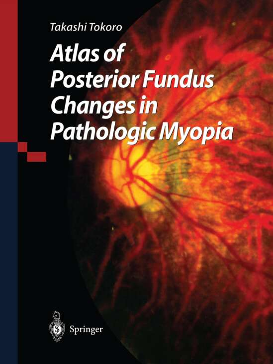 Atlas of Posterior Fundus Changes in Pathologic Myopia