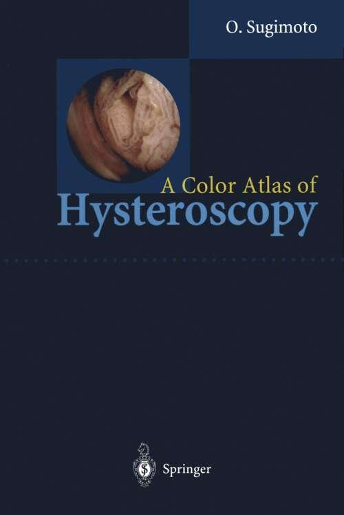A Color Atlas of Hysteroscopy